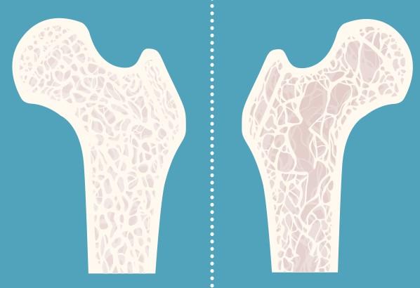 Bệnh loãng xương thường gặp ở người già